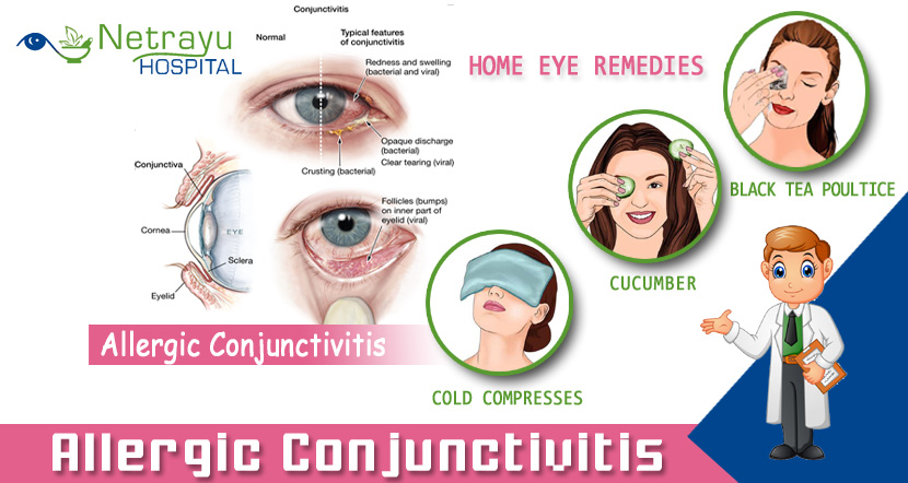 allergic-conjunctivitis.jpg